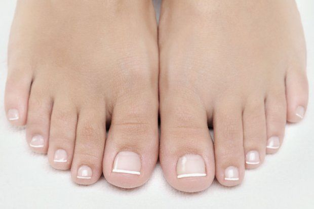 The clinician will then carry out an analysis of your nails to confirm if toenail fungus is present and if so, propose a treatment program based on the severity of the fungal nail infection. They'll also take photos and measurements so we can easily track your progress